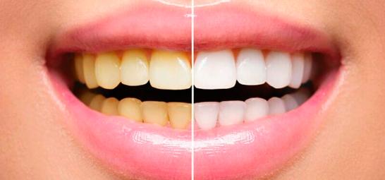 Отбеливание зубов зум день
