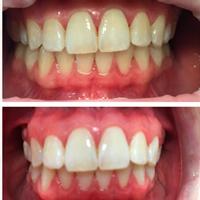 Отбеливание зубов в Москве — цены на отбеливание в студии Smile ROOM®