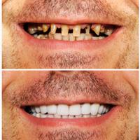 До и после имплантации на Юго-западной