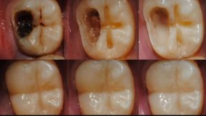 Лечение зубов от кариеса в Москве