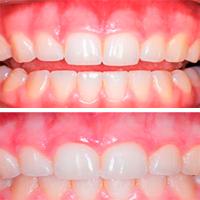 пародонтит до и после лечения