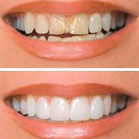 Виниры в авторской стоматологии на юго западной