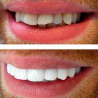 Виниры на зубы в стоматологии на юго западной