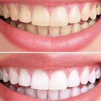 отбеливание зубной эмали в стоматологии