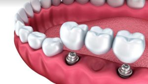 Имплантация зубов на 2 имплантантах