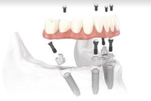 Протезирование зубов на 4-х имплантах