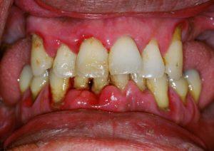 Зубы при пародотнтите