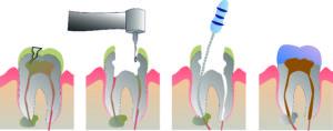 Корень зуба лечение