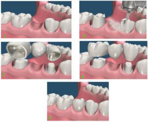 этапы установки коронки на зуб