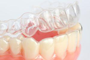 Капы для выравнивания зубов