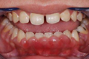 Симптомы гранулемы зуба