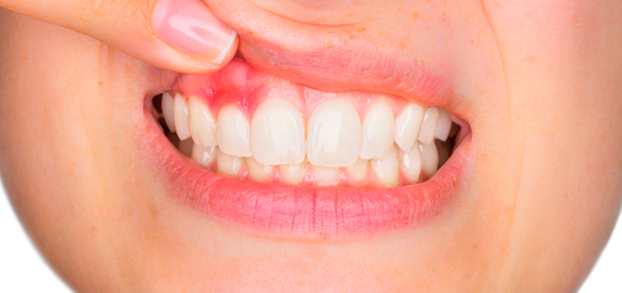 Фото гранулемы зуба