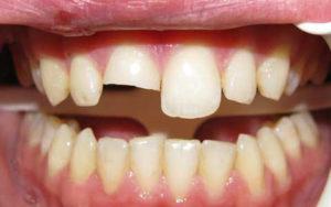повреждение передних зубов