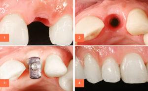 Основные этапы имплантации