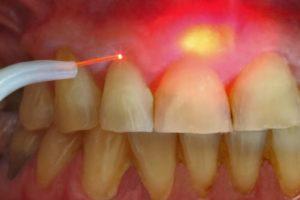 Лечение кисты зуба без удаления