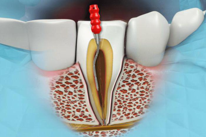 Удаление кисты через зуб