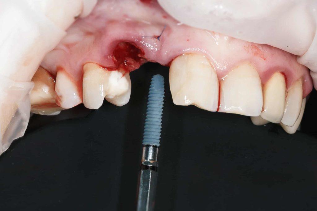периимплантит по вине больного