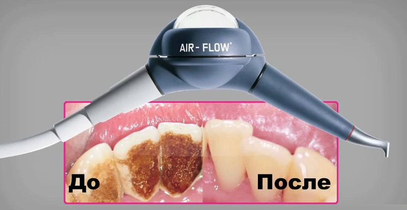 air flow до и после
